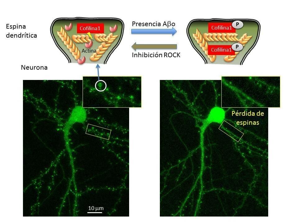 Neuronale cytoskeletons beteiligten bei der Alzheimer-Krankheit