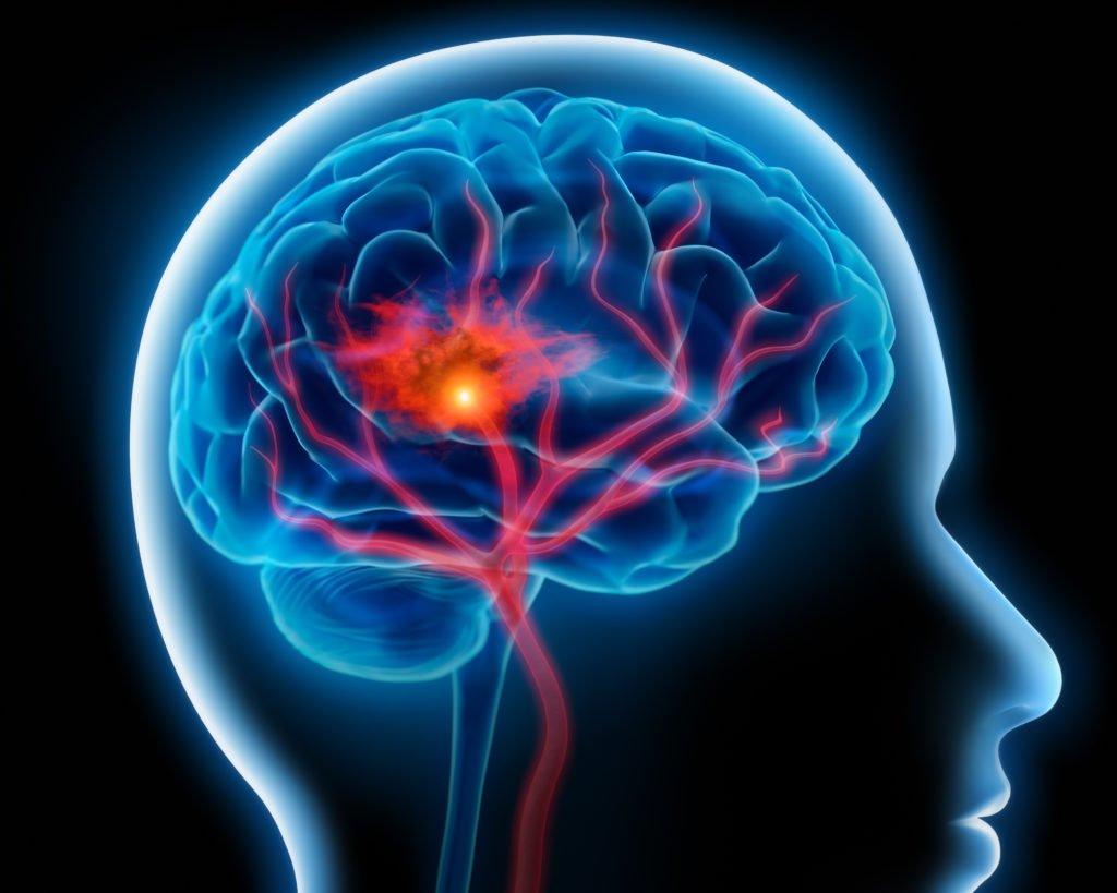 Neue Erkenntnis: Bluthochdruck und Rauchen steigern eindeutig die Gefahr von Hirnblutungen