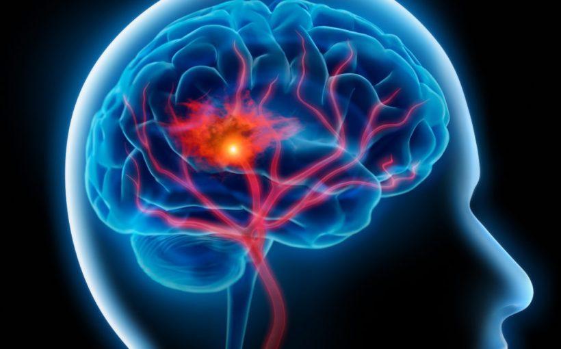 Risikofaktor: Bluthochdruck und Rauchen steigern die Gefahr einer Hirnblutung um ein vielfaches