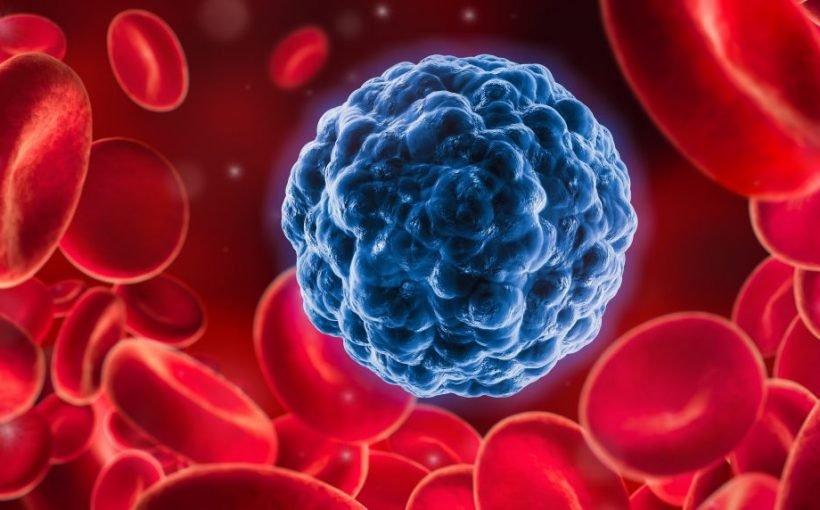 Durchbruch: Mediziner wandeln jetzt aggressive Krebszellen in gewöhnliche Fettzellen um