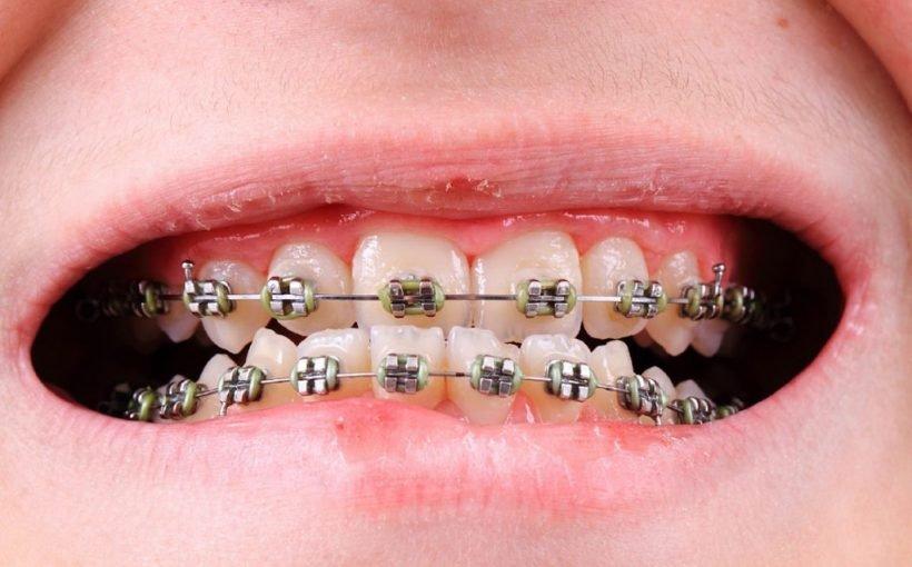 Sind Zahnspangen tatsächlich wirksam?