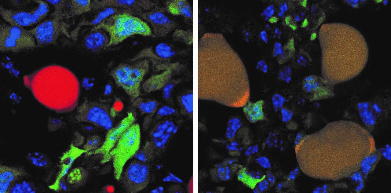 Brustkrebs-Zellen in Mäusen dazu verleitet, sich in Fettzellen