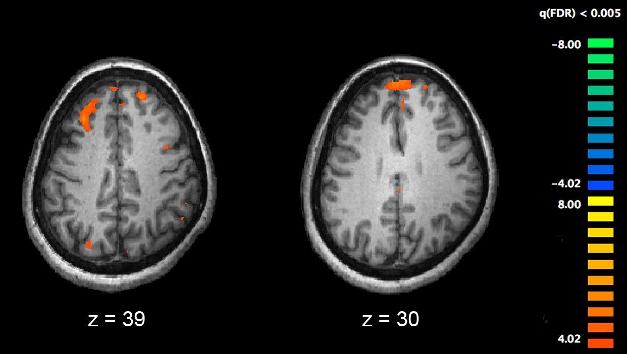 Forscher ID, behandeln, fehlerhafte Gehirn schaltungen zugrunde liegenden Symptome der Schizophrenie