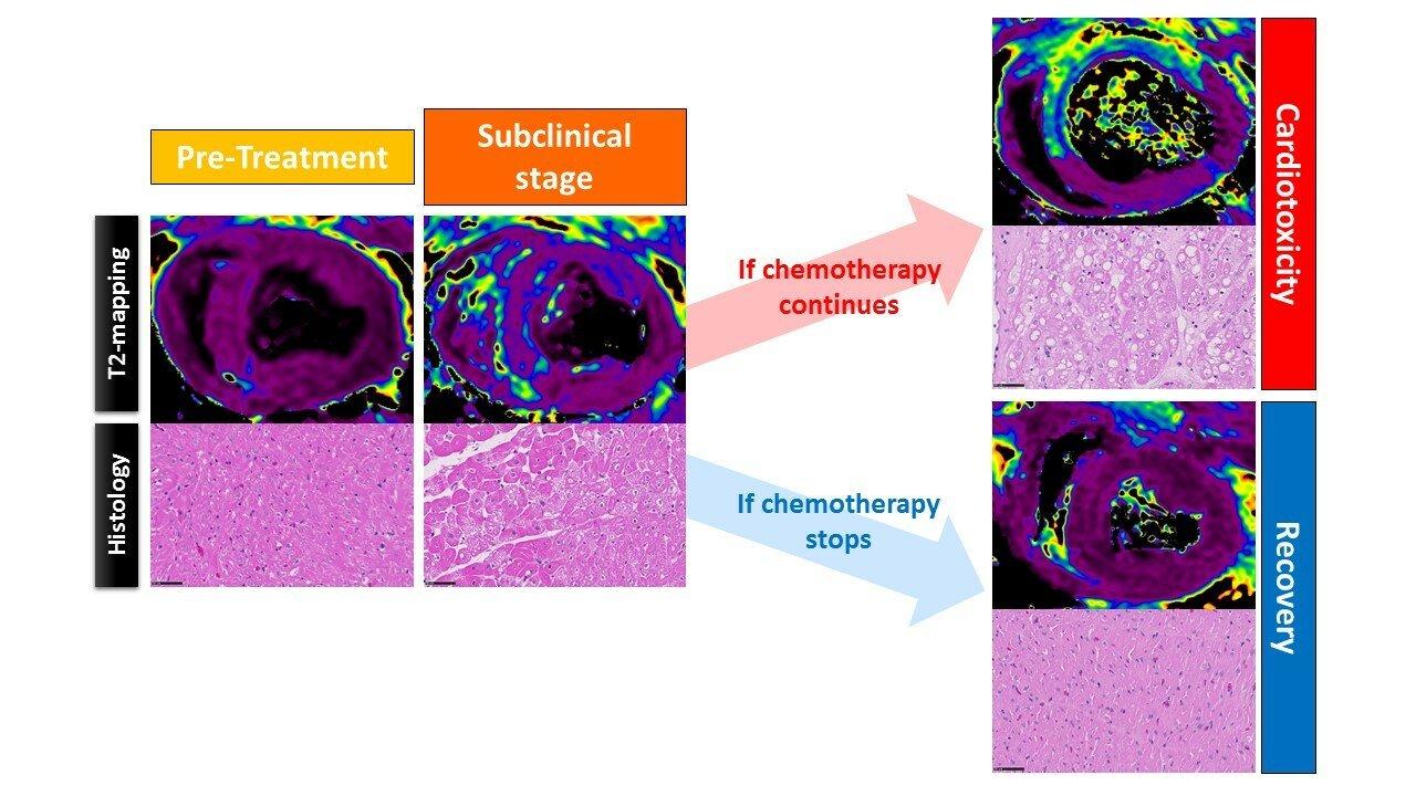 Forscher identifizieren einen sehr frühen marker der kardialen Schädigung, ausgelöst durch Krebs