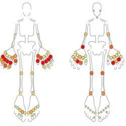 Maschinelles lernen könnte, keine unnötigen Behandlungen für Kinder mit arthritis