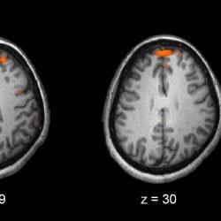 Für Patienten mit Schizophrenie, manche Medikamenten-Kombinationen effektiver sind als andere