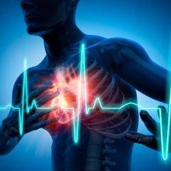 Tumor am Herzen: Diese Symptome weisen auf Herzkrebs hin