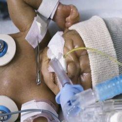Kleinkinder von einem Gewicht von 400 g, die überleben bei Risiko für schwere Morbidität