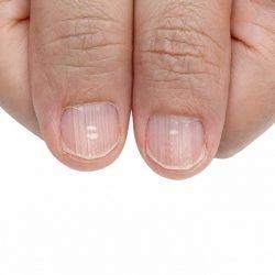 Diese Flecken auf den Fingernägeln sind häufig Anzeichen für Krankheiten
