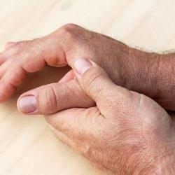 Bereits Todesfälle durch Arthritis-Medikament