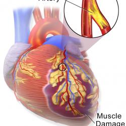 Unblocking Arterien nach Herzinfarkt kann Lebensretter für ältere Patienten