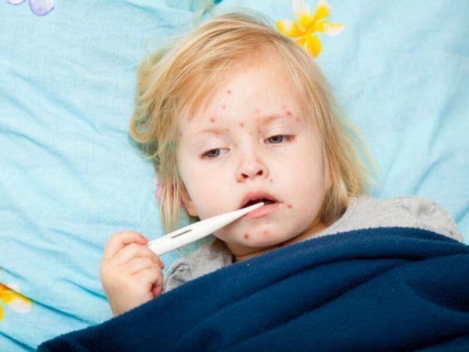 Los Angeles county Masern-Ausbruch unter Untersuchung