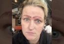 Verpfuschte Microblading Vorfall Hinterließ Diese Frau Mit 4 Augenbrauen