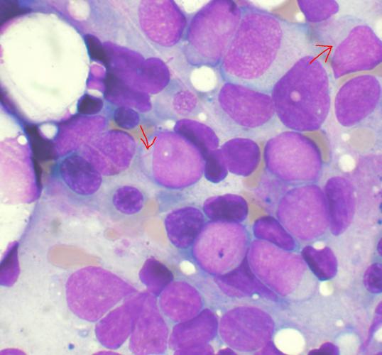 Gilteritinib verbessert überleben für Patienten mit akuter myeloischer Leukämie