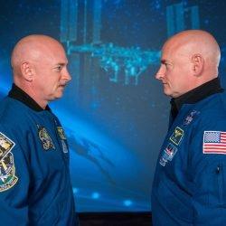 NASA-Zwillinge-Studie stellt die Raumfahrt wirkt sich auf die Darm Bakterien