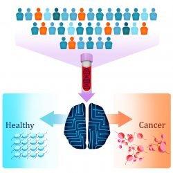 """Neue Blut-test verwendet DNA """"Verpackung"""" Muster zu erkennen, mehrere Krebsarten"""