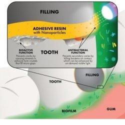 Antibakterielle Nanopartikel: Auf einer mission zur Rettung Ihrer Zähne
