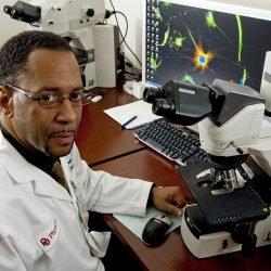 Forscher entdecken Auslöser für Muskel-wasting Zustand