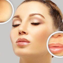 Damenbart entfernen – die besten Tipps für glatte Haut