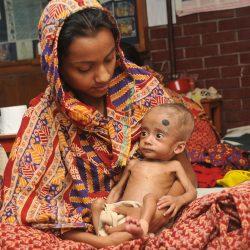 Für unterernährte Kinder, neue therapeutische Nahrung steigert die Darm-Mikroben, die die gesunde Entwicklung