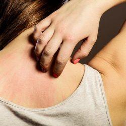 Krankheiten von Leber und Darm: 8 Hautveränderungen, die dich alarmieren sollten