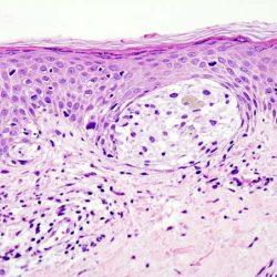 Forscher identifizieren effektive Wirkstoffkombination gegen uveal Melanomen