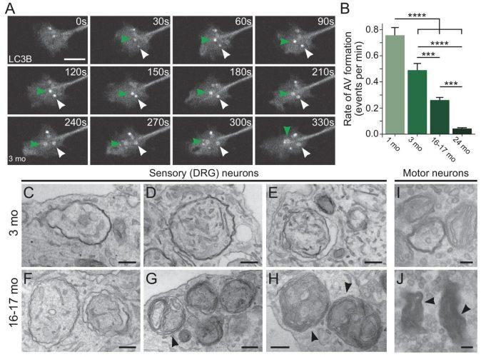 Unter den protein-Müll wird immer schwieriger, da die Neuronen Alter