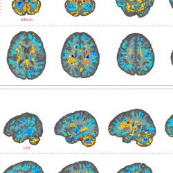 Vermeintliche Schall-Attacken: Forscher entdecken Auffälligkeiten in Gehirnen von US-Diplomaten