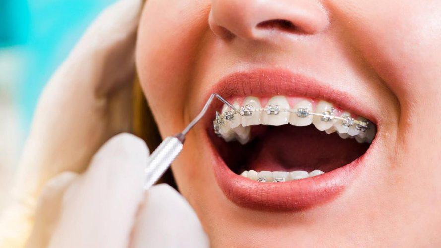 Goldgrube Mund: Ärzte machen mit Zahnspangen Kasse