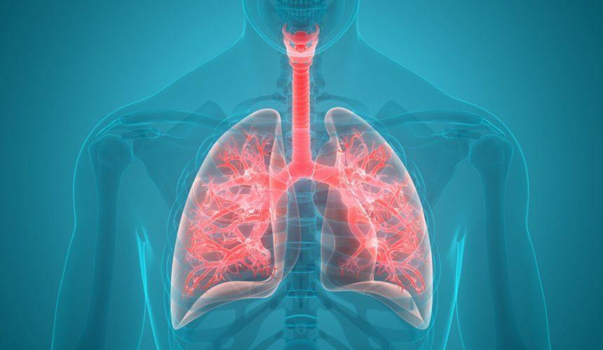 Studie zeigt überraschende trends für eine schwere Lungenkrankheit,