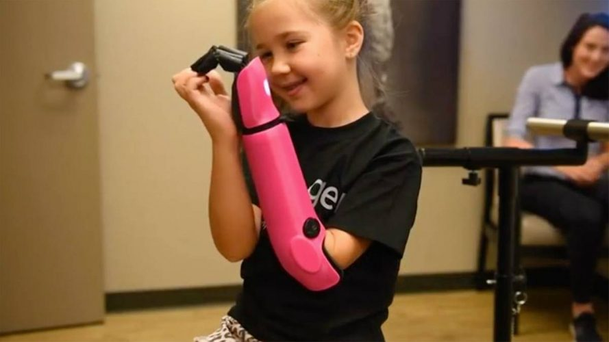 Mady hat's wieder im Griff – Achtjährige bekommt bionische Armprothese