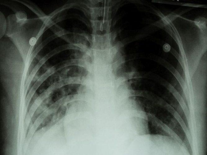 FDA genehmigt das Medikament für die meisten tödlichen form von Tuberkulose