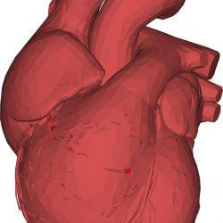 Krebs im Kindesalter überlebenden zu erhöhten Risiko von Herzerkrankungen
