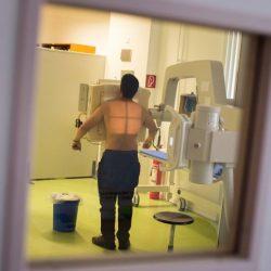 InDeutschland erkranken noch immer Tausende an Tuberkulose