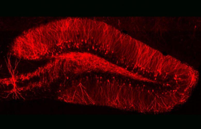 Lernen, wie Erinnerung funktioniert, könnte der Schlüssel zur Behandlung von PTBS