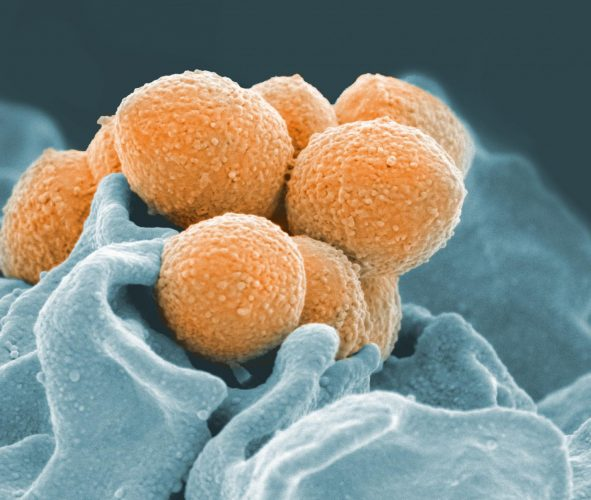 Neue Bakterien-Stamm verknüpft, Scharlach, Halsschmerzen und sepsis