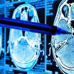 Künstliche Intelligenz in der Medizin wirft ethische und rechtliche Bedenken