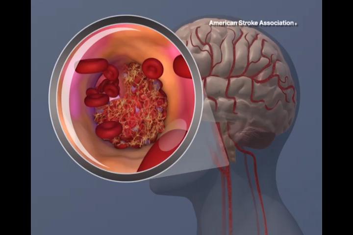Advanced MRI Gehirn-scan kann helfen, vorherzusagen, Schlaganfall, Demenz