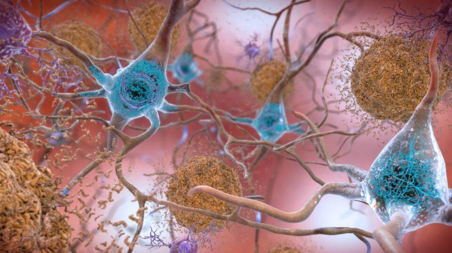 Übung könnte langsam welken Auswirkungen von Alzheimer