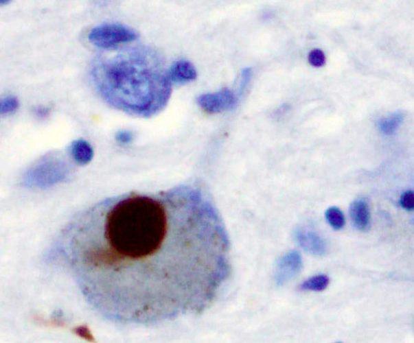 Wissenschaftler finden mögliche Diagnose-tool, dass die Behandlung der Parkinson-Krankheit