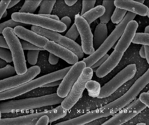 Studie fordert für das screening für Drogen-resistenten E. coli in capsulized fäkale Transplantationen