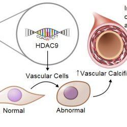 Studie identifiziert die Rolle spezifischer gene in der Verhärtung der Gefäßwände