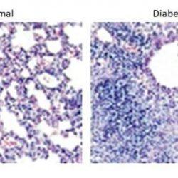 Warum Infektionen der Atemwege sind mehr tödlich, bei Menschen mit diabetes
