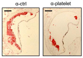 Arterienverkalkung: Blutplättchen, Entzündung und ein Schelm protein verschwören sich gegen das Herz