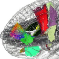 Mit dem Bau der ersten holographischen Gehirn 'atlas'