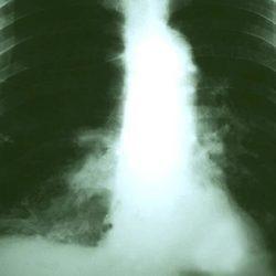 Behandlung von Vorteil für nonagenarians mit Lungenkrebs
