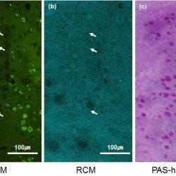 Imaging von Bindehaut-goblet-Zellen hilft, die Diagnose von trockenen Augen