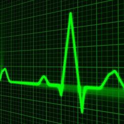 Machine-learning-algorithmen zu entwickeln, ein Risiko-score zur Vorhersage Tachykardie-Episoden