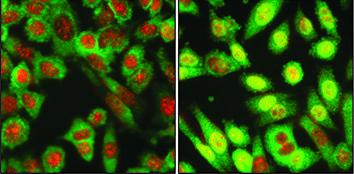Aktivierung einer distinkten genetischen Signalweg kann verlangsamen den Fortschritt der Behandlung von metastasierendem Brustkrebs