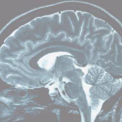 Sind größere Gehirne besser?